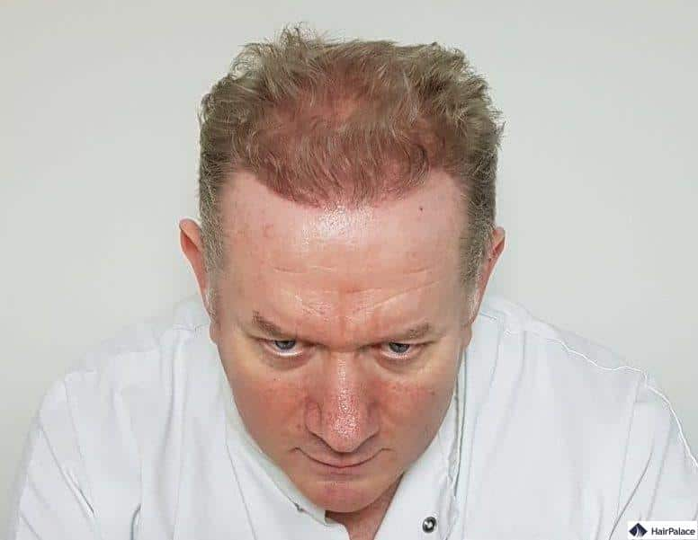 Regis Haaransatz 6 Monate nach der Implantationplant