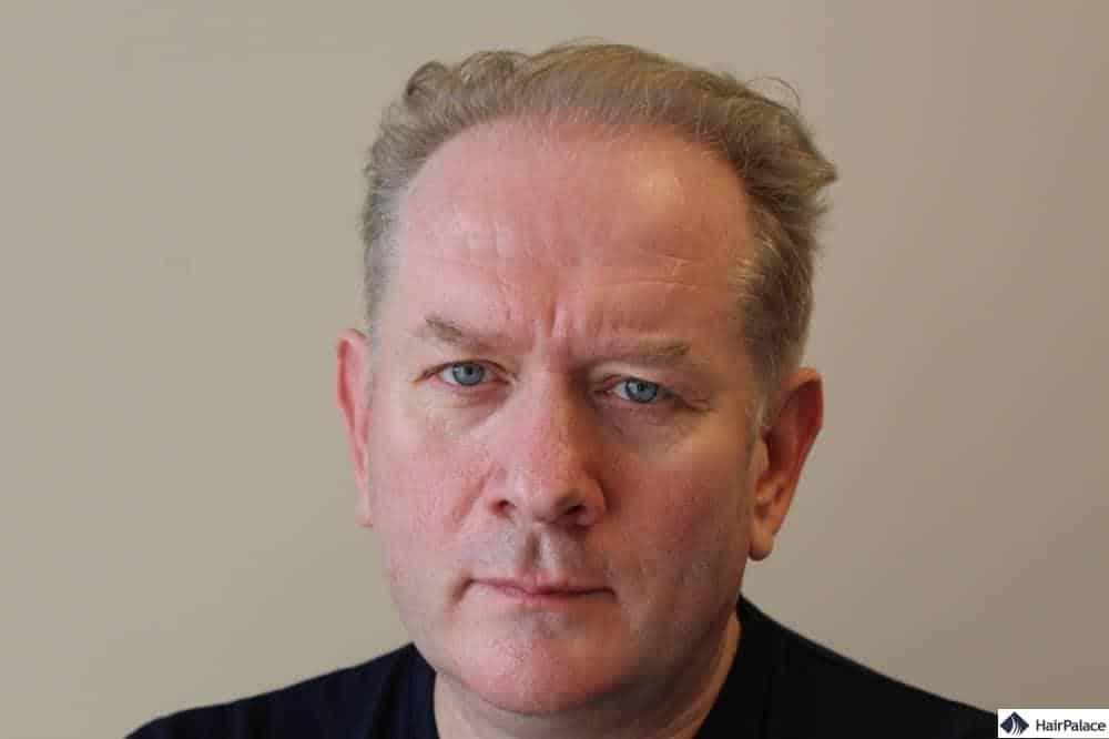 Regis Haaransatz vor der Haartransplant