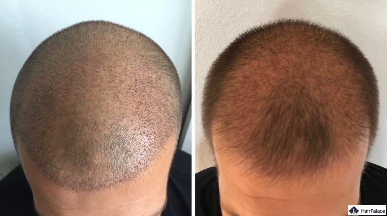 Die Empfängerareale 1 und 3 Wochen nach der Haartransplantation
