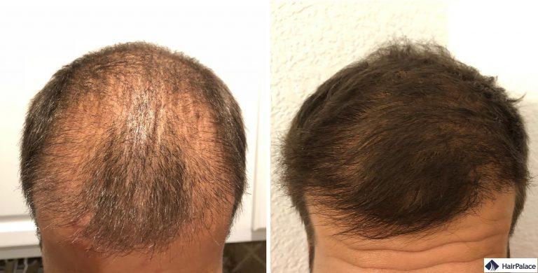 Sams implantierter Bereich 3 und 6 Monate nach der Haartransplant