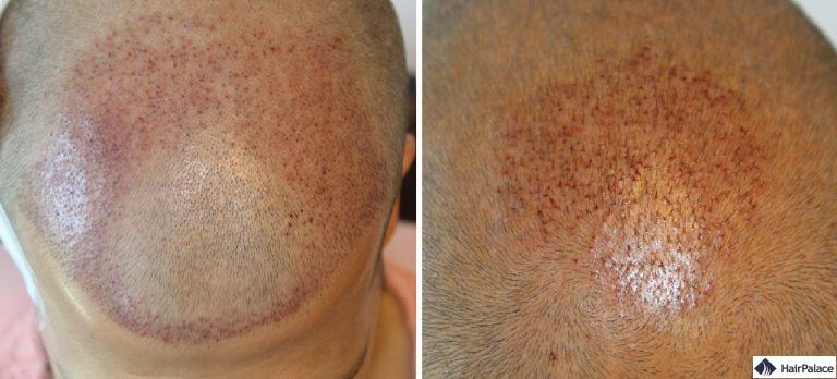 Empfängerareale nach der Haartransplant