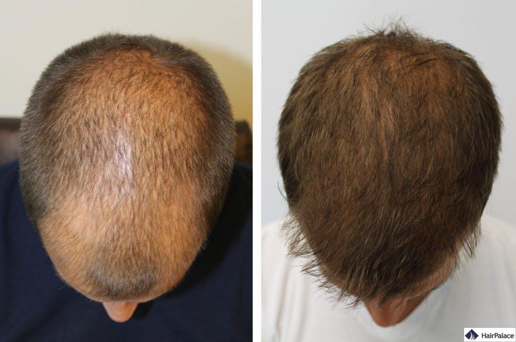 Oberkopf vor und nach der Haartransplant