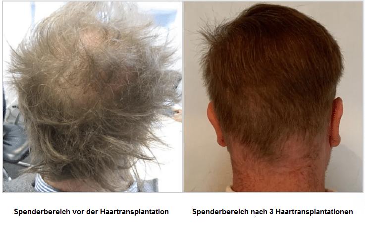 spenderbereich-vor-und-nach-der-haartransplantation-david