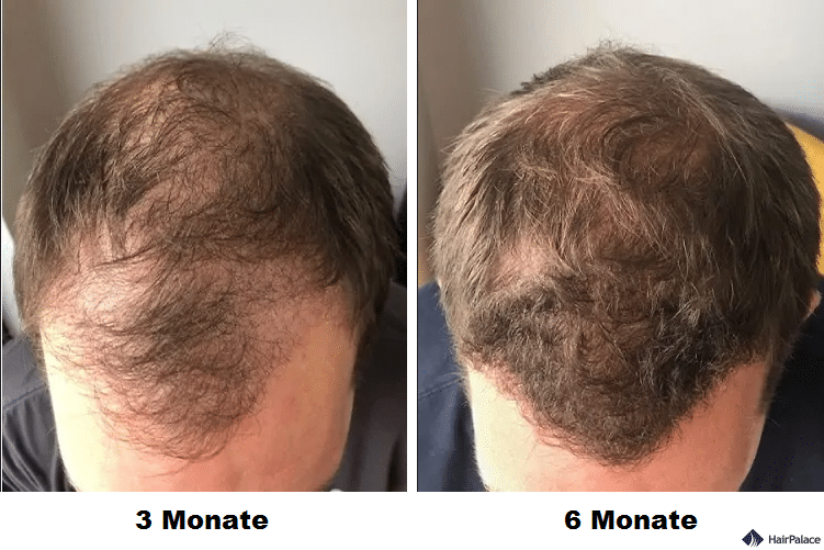 toby-3-months-and-6-months-after-the-fue2-hairtransplant