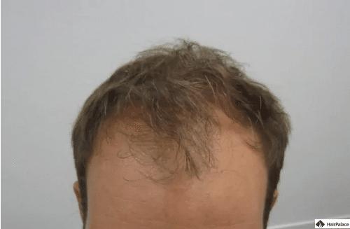 tobys-haaransatz-und-frontalzone-bei-der-konsultation