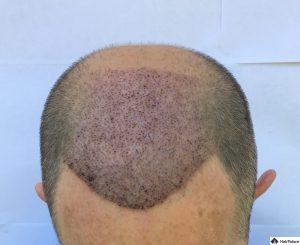 tom-1-woche-nach-seiner-ersten-haartransplantation
