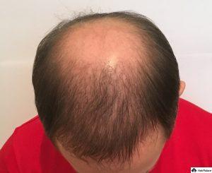 tom-6-monate-nach-seiner-ersten-haartransplantation