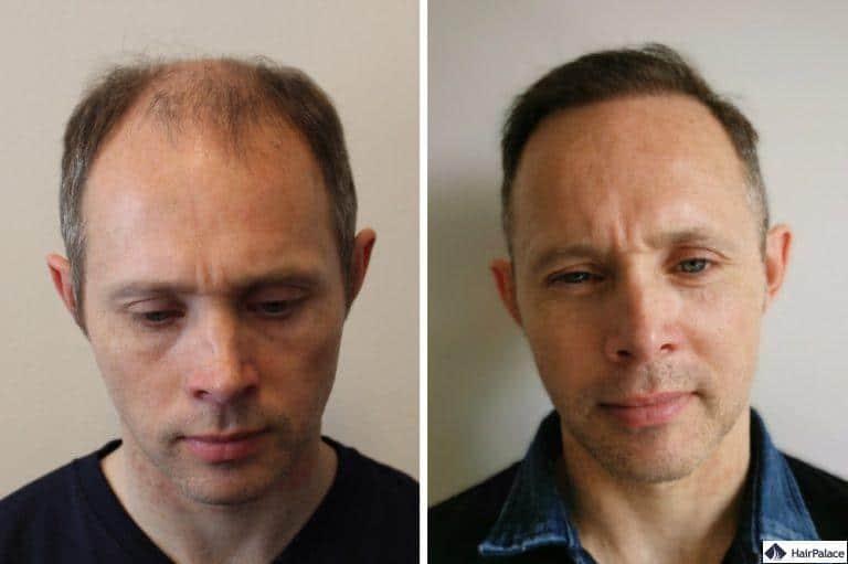 tom-vor-und-nach-seiner-haartransplantation