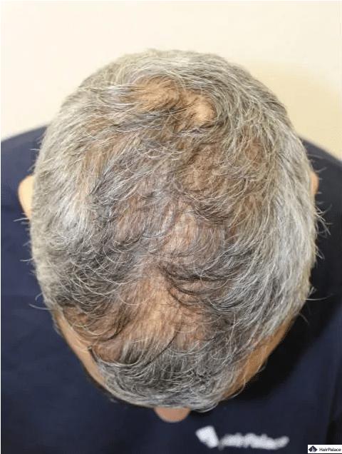 vor-der-haartransplantation-ezra
