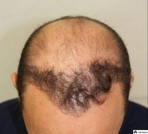 xavier-ergebnis-der-1-haartransplantation