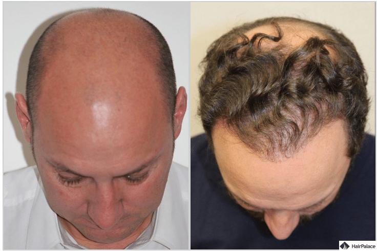 xavier-ergebnis-nach-der-2-haartransplantation