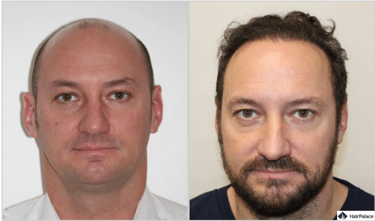 xavier-haartransplantation-ergebnis-1