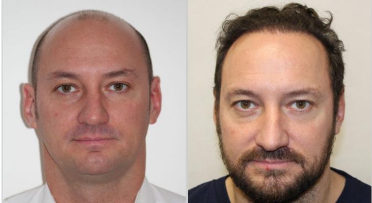 xavier-haartransplantation-ergebnis