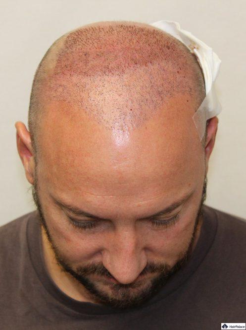xavier-nach-der-2-haartransplantation