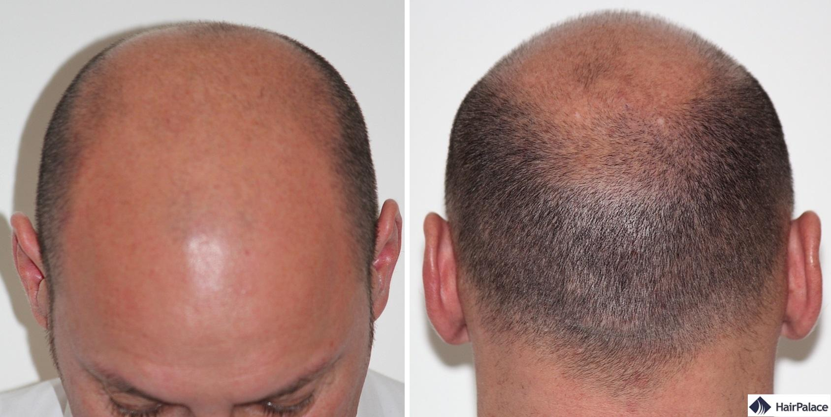 xavier-vor-der-haartransplantation