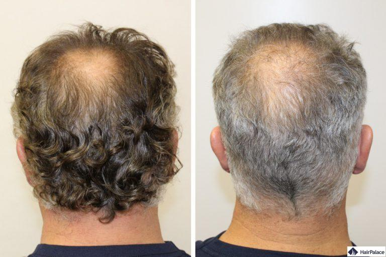 Der Spenderbereich vor und nach der Haartransplantation