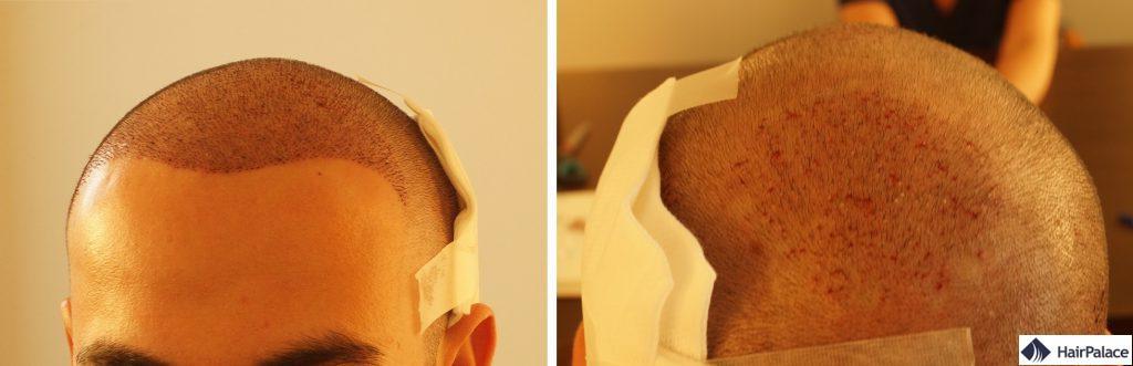 implantierte-bereiche-cyril