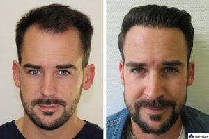 Maximes Haartransplantation mit FUE