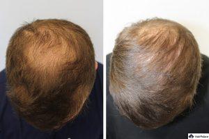 peters FUE2 haarimplantation