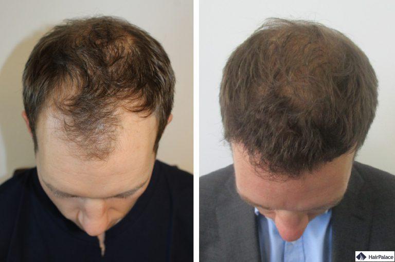 toby-vor-und-nach-der-haartransplantation-operation