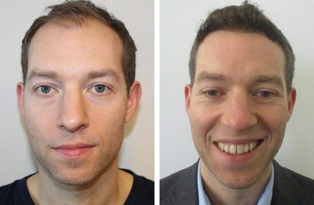 tobys-dickeres-haar-vor-und-nach-unserer-haartransplantation-2