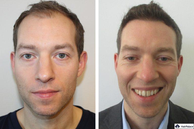 tobys-dickeres-haar-vor-und-nach-unserer-haartransplantation