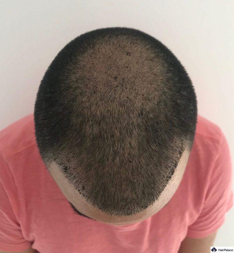 yohann-1-woche-haarimplantation