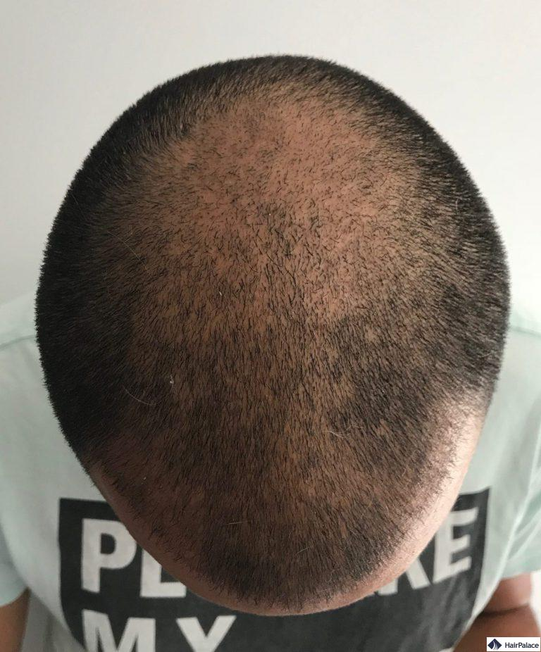 yohann-3-monat-haarimplantation
