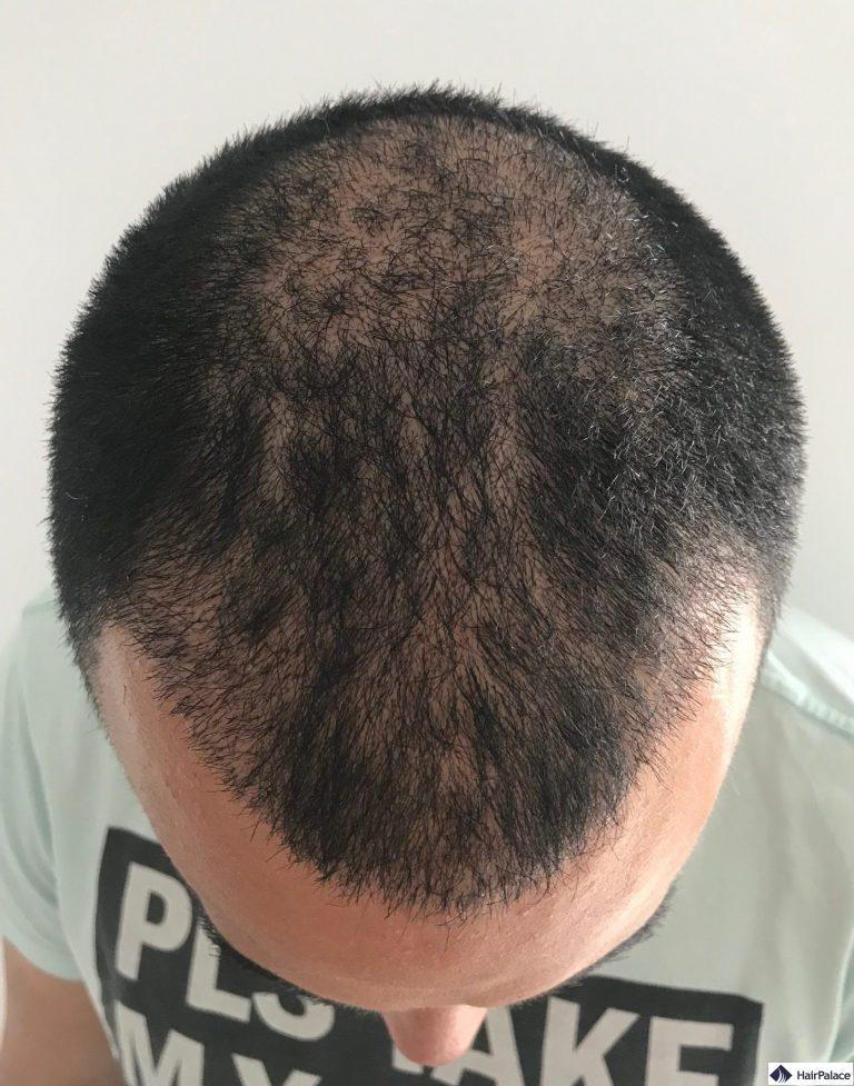 yohann-3-woche-haarimplantation