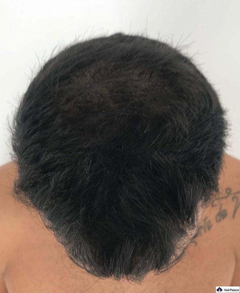 yohann-6-monat-haarimplantation