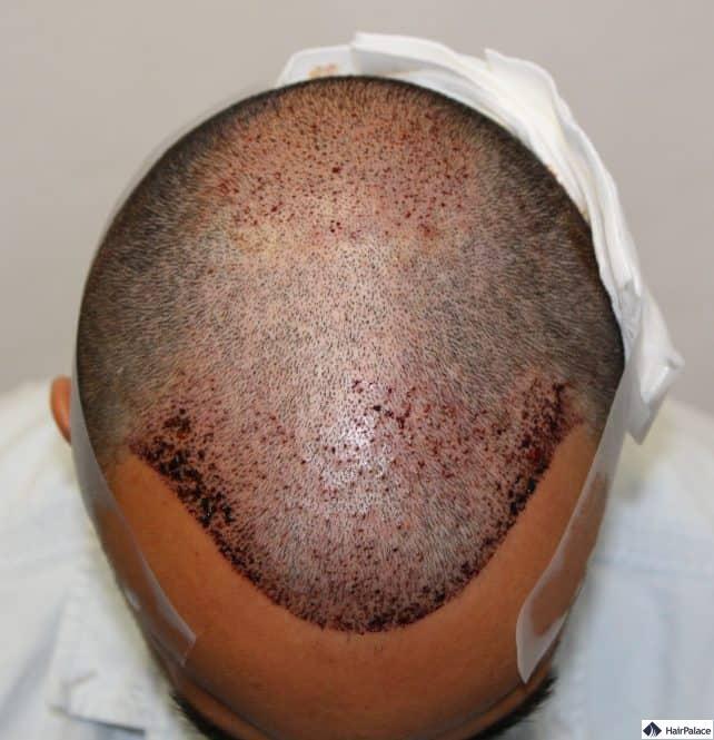 yohann-fue2-haarimplantation