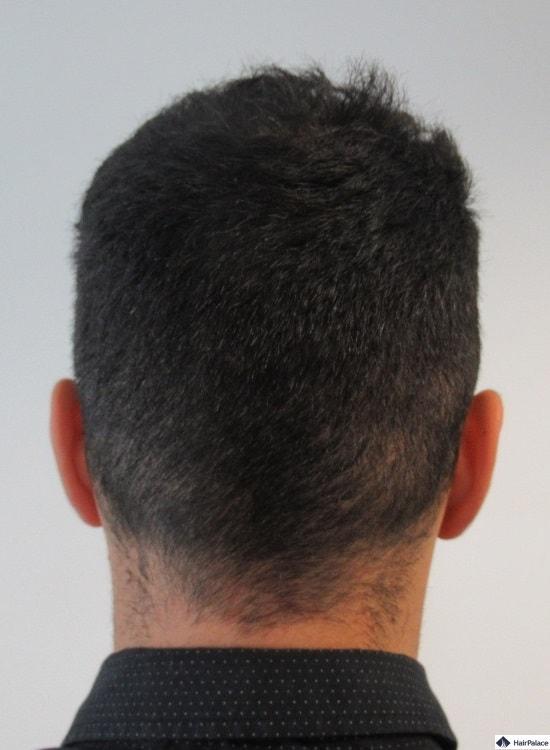 yohann-spendergebiet-ein-jahr-spaeter-haarimplantation