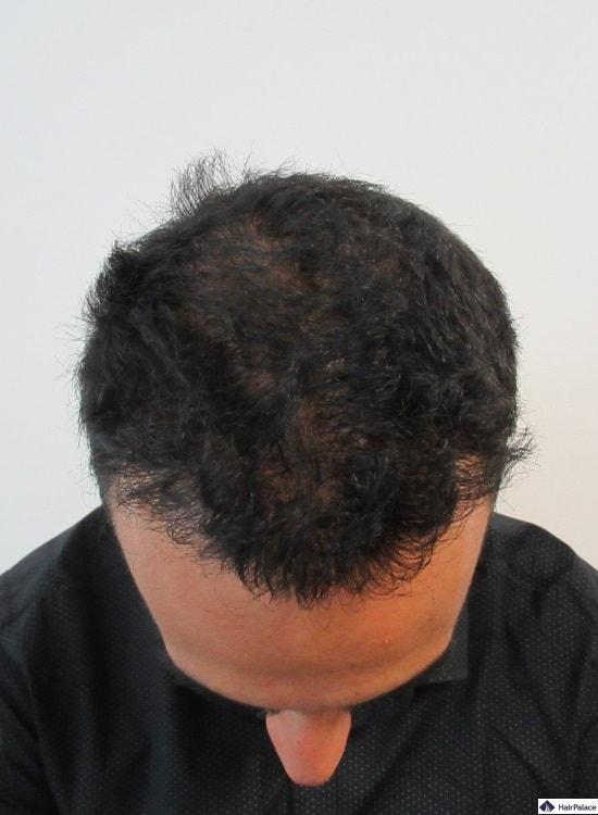 yohann-ein-jahr-nach-der-haartransplantation-oben-auf-dem-haar