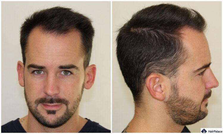 Spärliches Haar vor der Operation