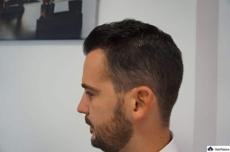 erfolgreiches Ergebnis der Haarimplantation
