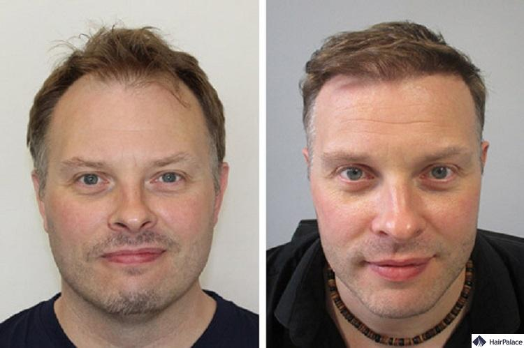 paul haartransplantation Vorher-Nachhe