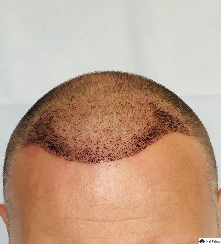 paul-ergebnis-ueber-1-woche-haartransplantation