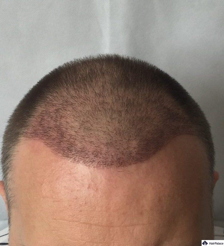 paul-ergebnis-ueber-3-woche-haartransplantation