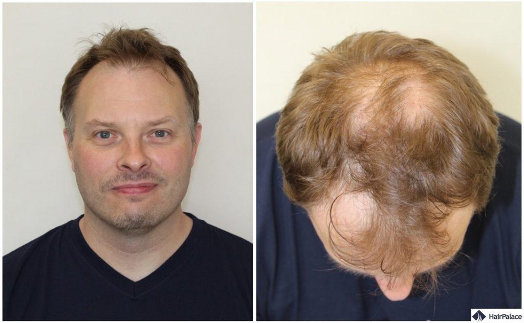 paul-haartransplantation-beratung