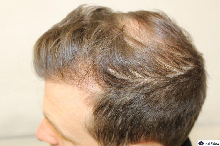 Peter Haartransplantation Beratung