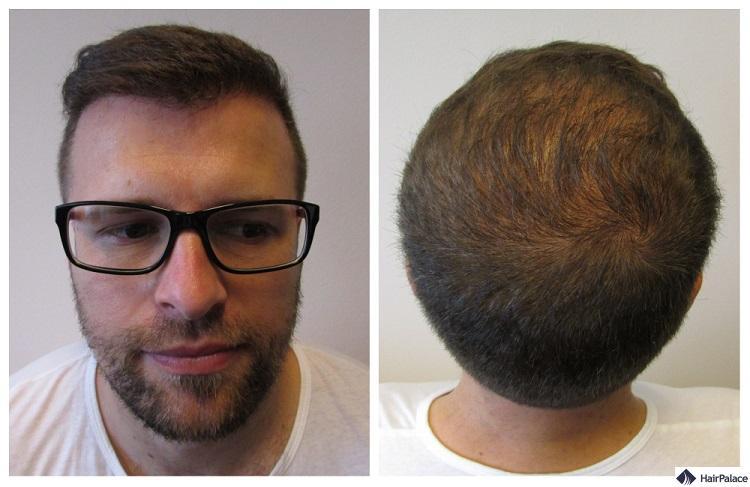 Haartransplantationsergebnis nach einem Jahr