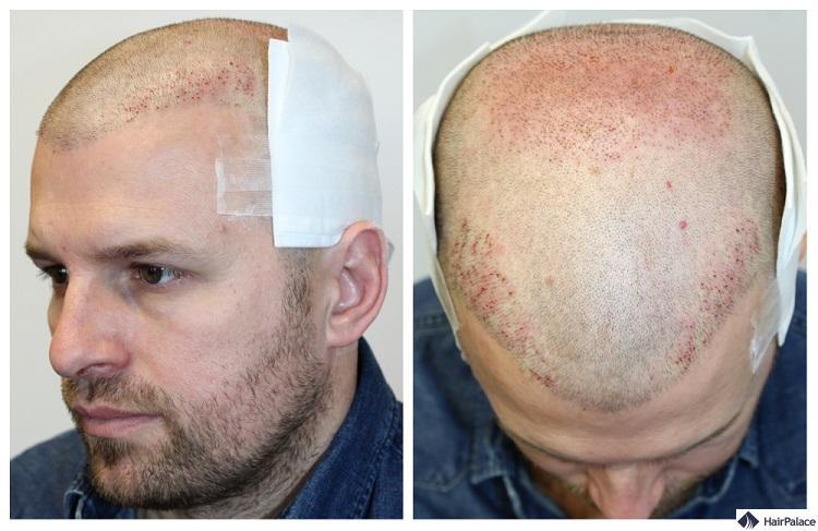 Während seiner 2. Behandlung bekam Peter 5096 Haare