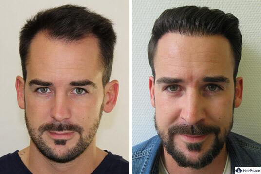 Maxim erfolgreiche Haartransplantation
