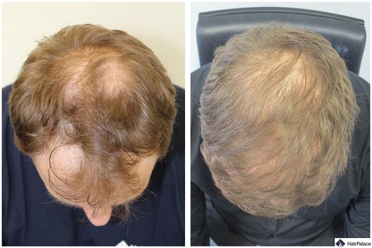 paul haarimplantat vorher-nachher
