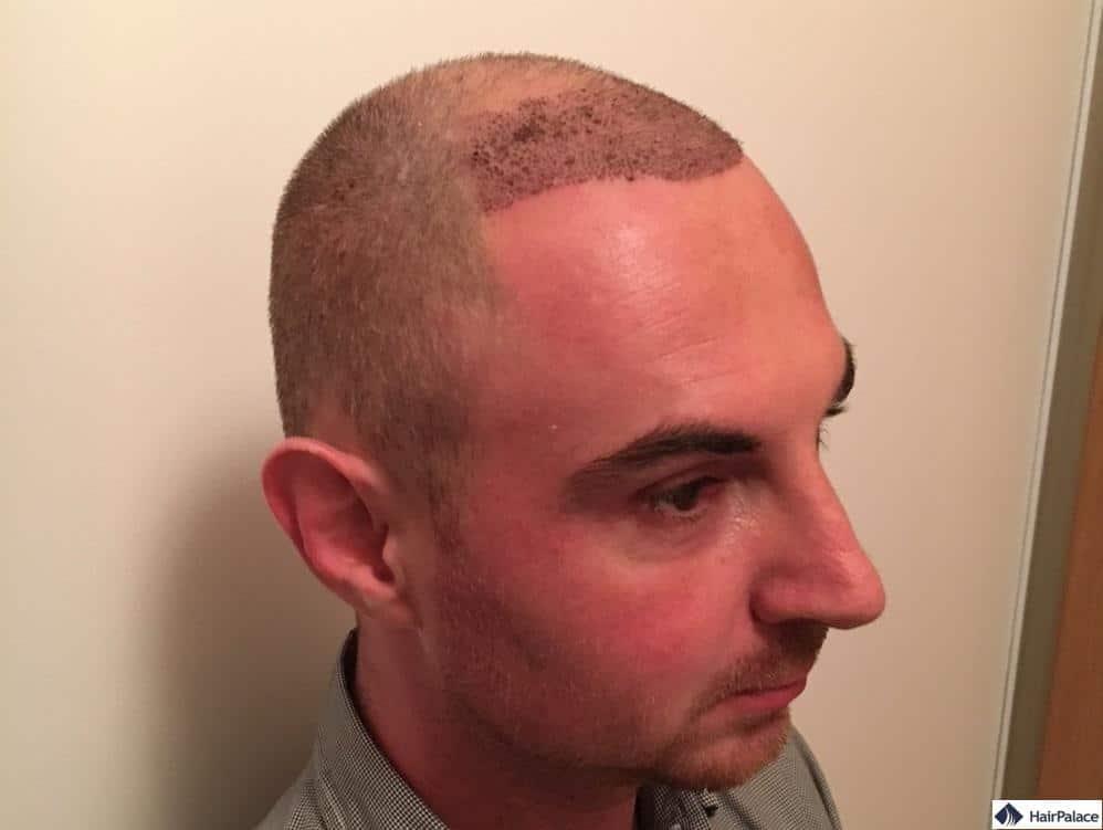 Alex' Kopfhaut mit dem sichtbaren Schorf 1 Woche nach der Haartransplantation