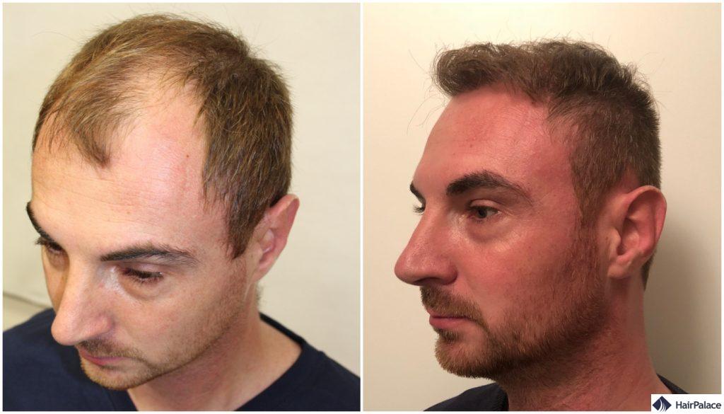 Alex vor und ein Jahr nach seiner ersten Operation