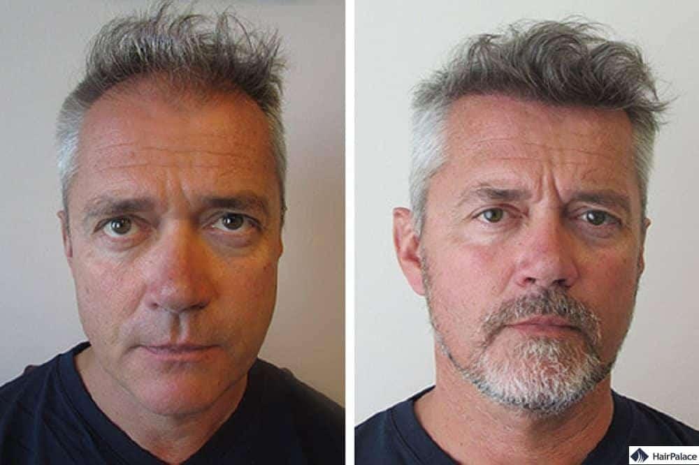 erfolgreiche haarimplantation