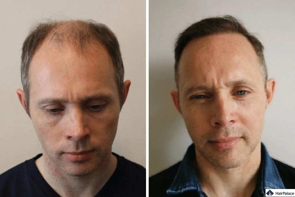 Vorher Nachher der Haartransplantation