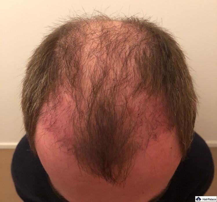 Nach 3 Wochen beginnen die implantierten Haare auszufallen