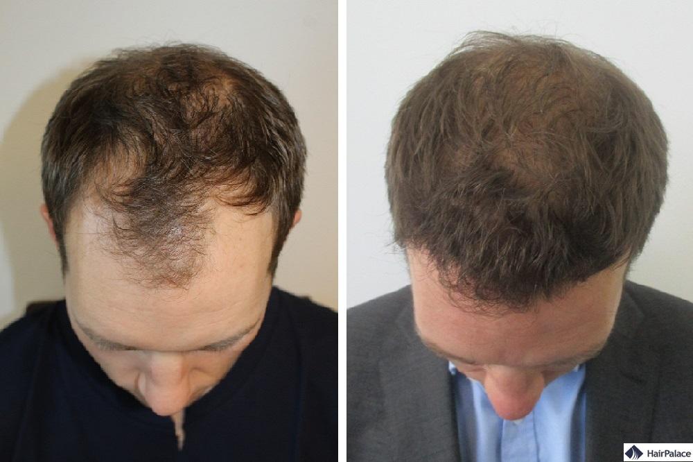 dickeres haar vor und nach unserer haartransplantation